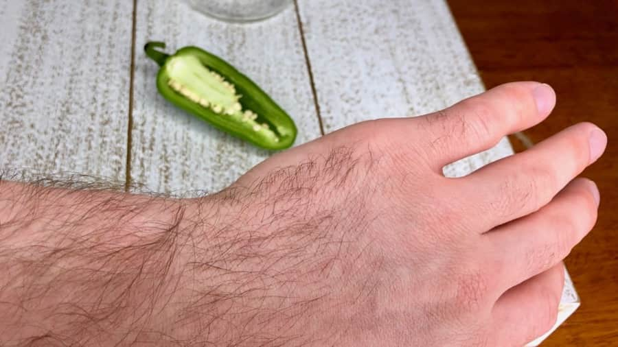 Pepper Burn on Hand